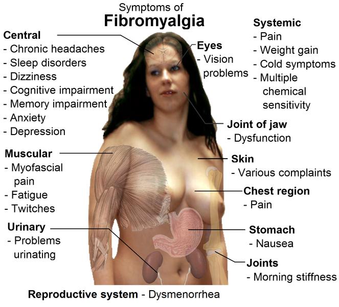 Decrease your fibromyalgia pain flair up